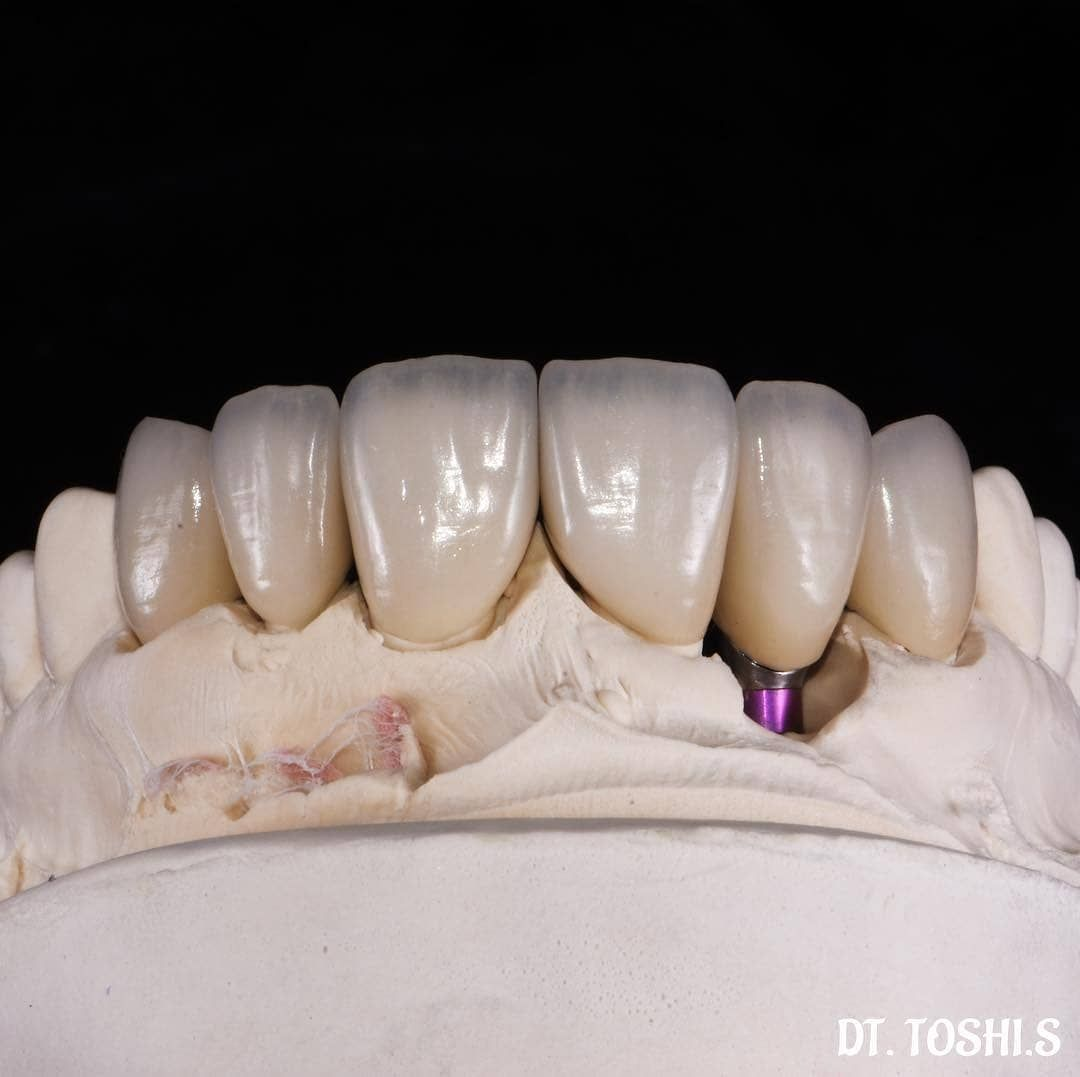 Dt Toshi Suenaga E Max Crowns And Veneers Ho1 E Max Dentaltechnician Dentaltech Dentist Dentista Aesth Dental Photography Dentist Aesthetic Dentistry