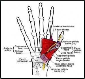 iphone hand pain   anatomy   Pinterest   Medical