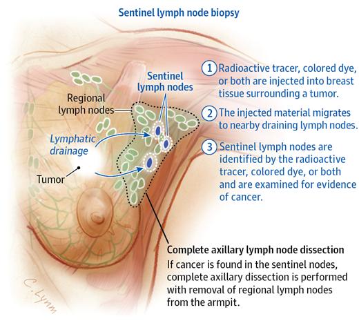 Breast Cancer And Axillary Lymph Nodes Jama 2013310141518 Doi