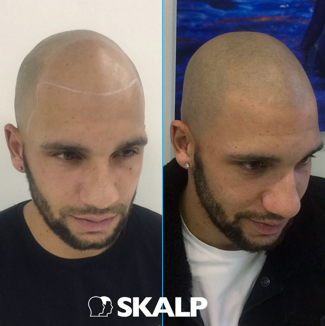 Thinning hair? Forget about Hair Loss with Skalp! #Skalp #SMP ...