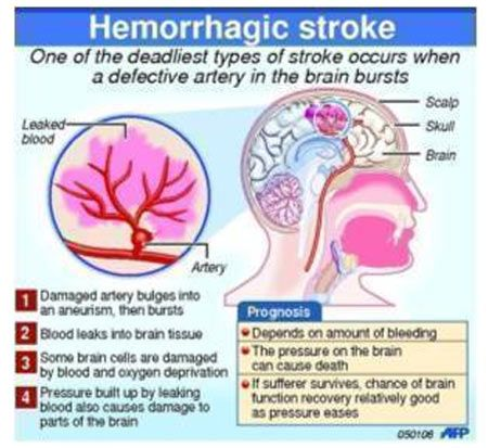Infographics On Stroke Medical Technology Neurology Nursing