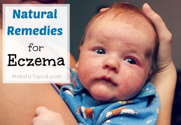 Natural Remedies For Eczema Holistic Squid Holistic