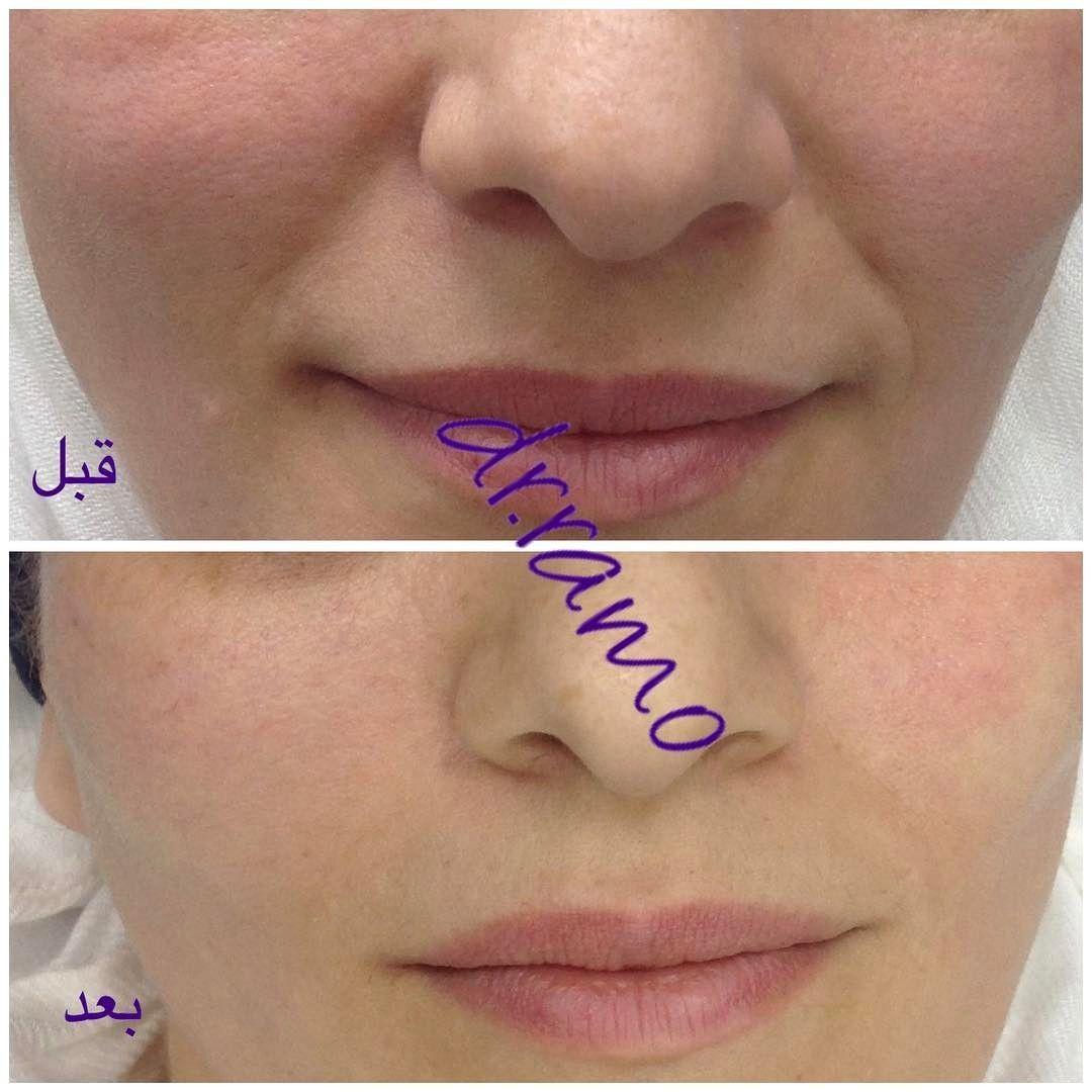 الخيوط لشد الخدين و اخفاء خطوط الابتسامة دون حقن الفيلر والنتيجة فورا بعد الاجراء جمعتكم مباركة Exfoliating Lip Scrub Lip Fillers Skin Care Techniques