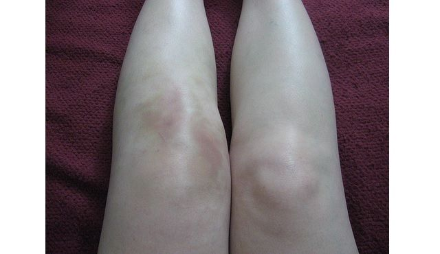 Symptoms Of Lyme Disease Swollen Knee Knee Arthritis Fluid On The Knee