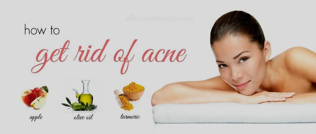 to get gone zits in 5 minutes how to get rid of acne in a natural way and once and for all in tamilhow to get rid of acne in a natural way and once and for all in tamil