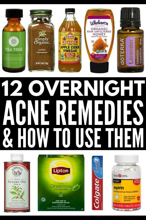 to Get Rid of Acne Overnight  Want to know how to get rid of pimples and blemishes on your forehead face chest and back fast and naturally While these acne products and a...