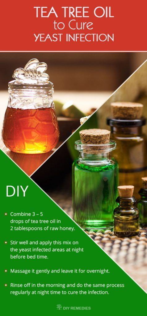 How-to-Cure-Yeast-Infection-using-Tea-Tree-Oil How to cure your yeast infection symptoms fast with natural remedies.
