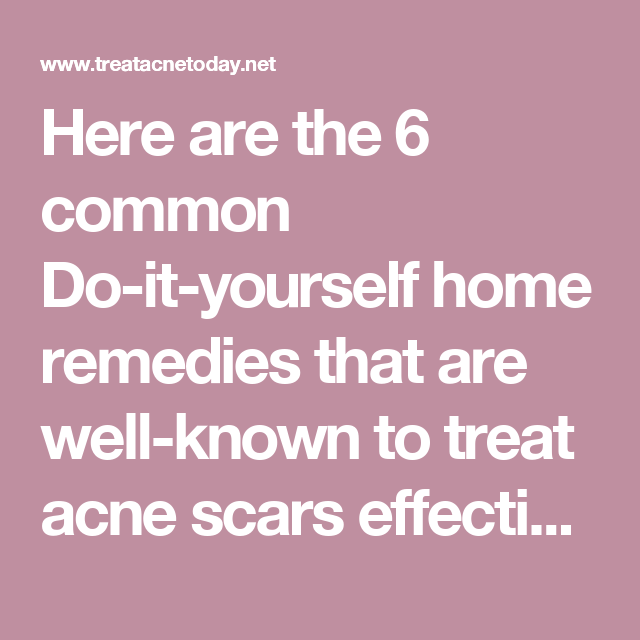 Here are the 6 common do it yourself home remedies that are well here are the 6 common do it yourself home remedies that are well solutioingenieria Gallery