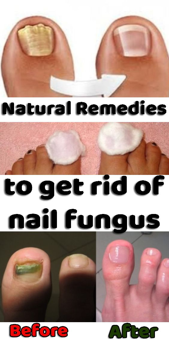 Effective Natural Remedies To Get Rid Of Nail Fungus Nail Fungus Fungi Natural Remedies