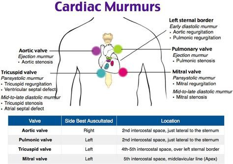 Image Gallery heart murmur locations | Nursing study ...