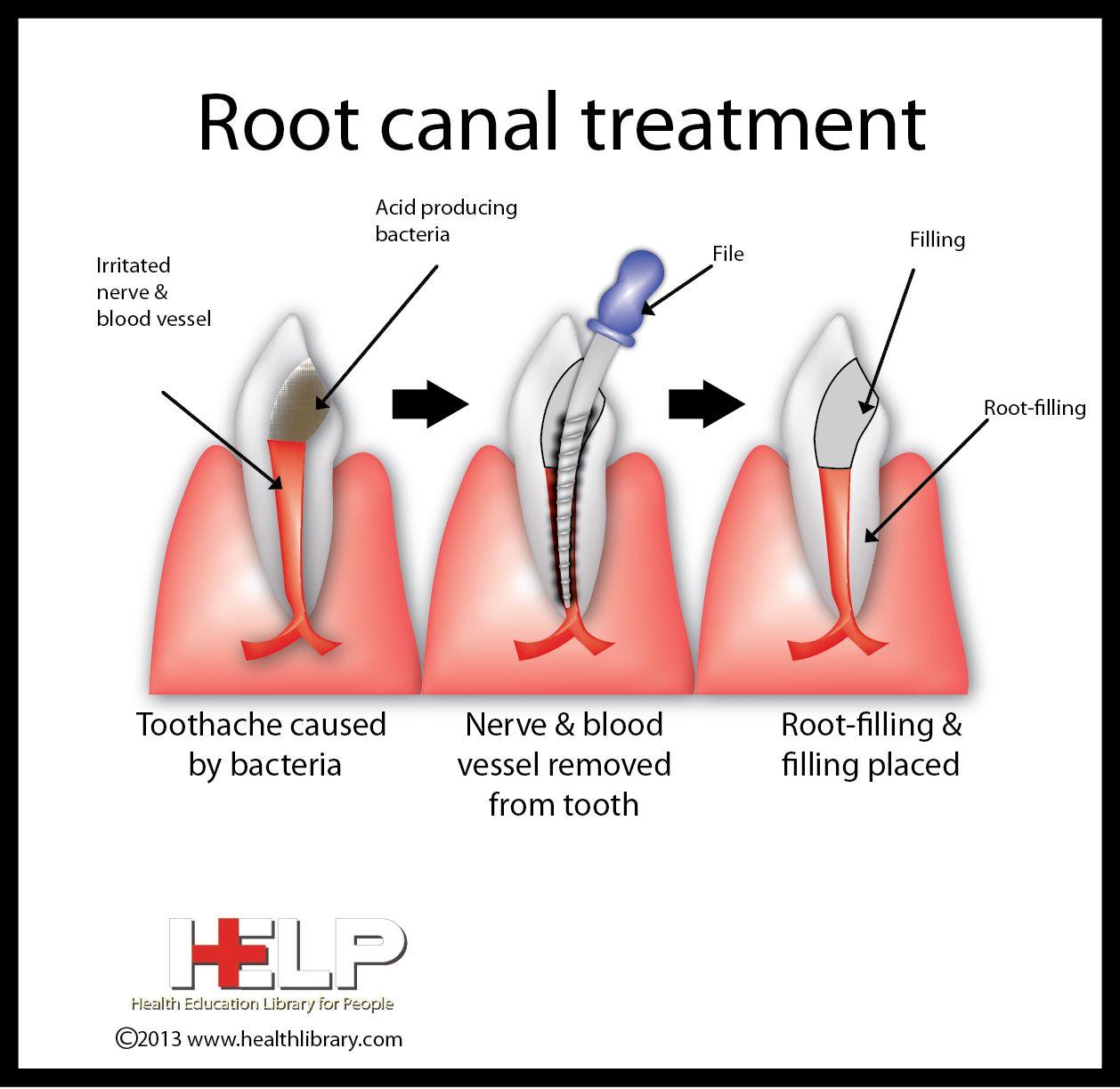 Teeth Whitening, Dentistry