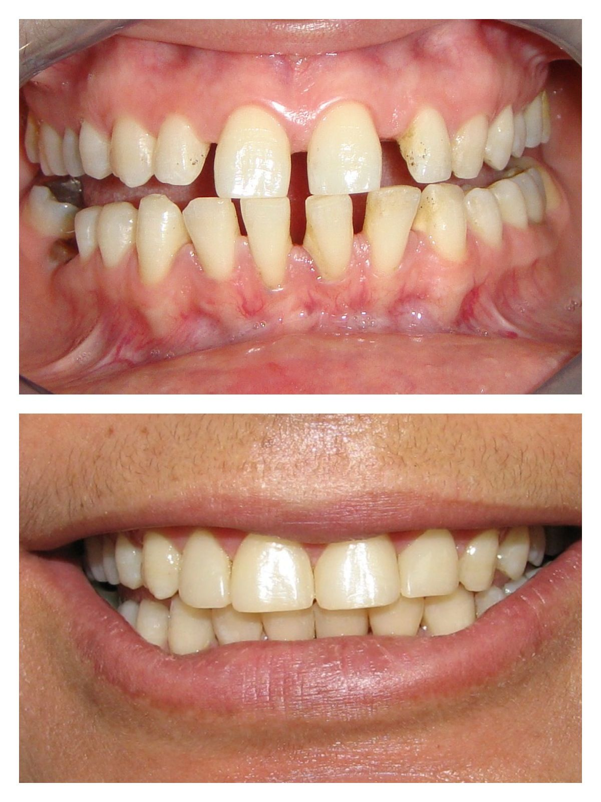 full mouth diastema closure Closure, Dentistry