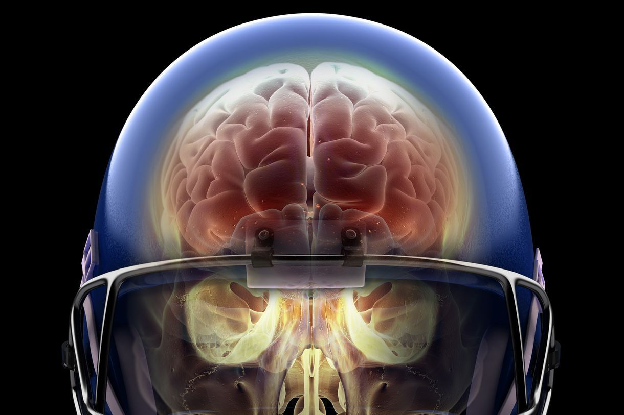 What A Lifetime Of Playing Football Can Do To The Human Brain