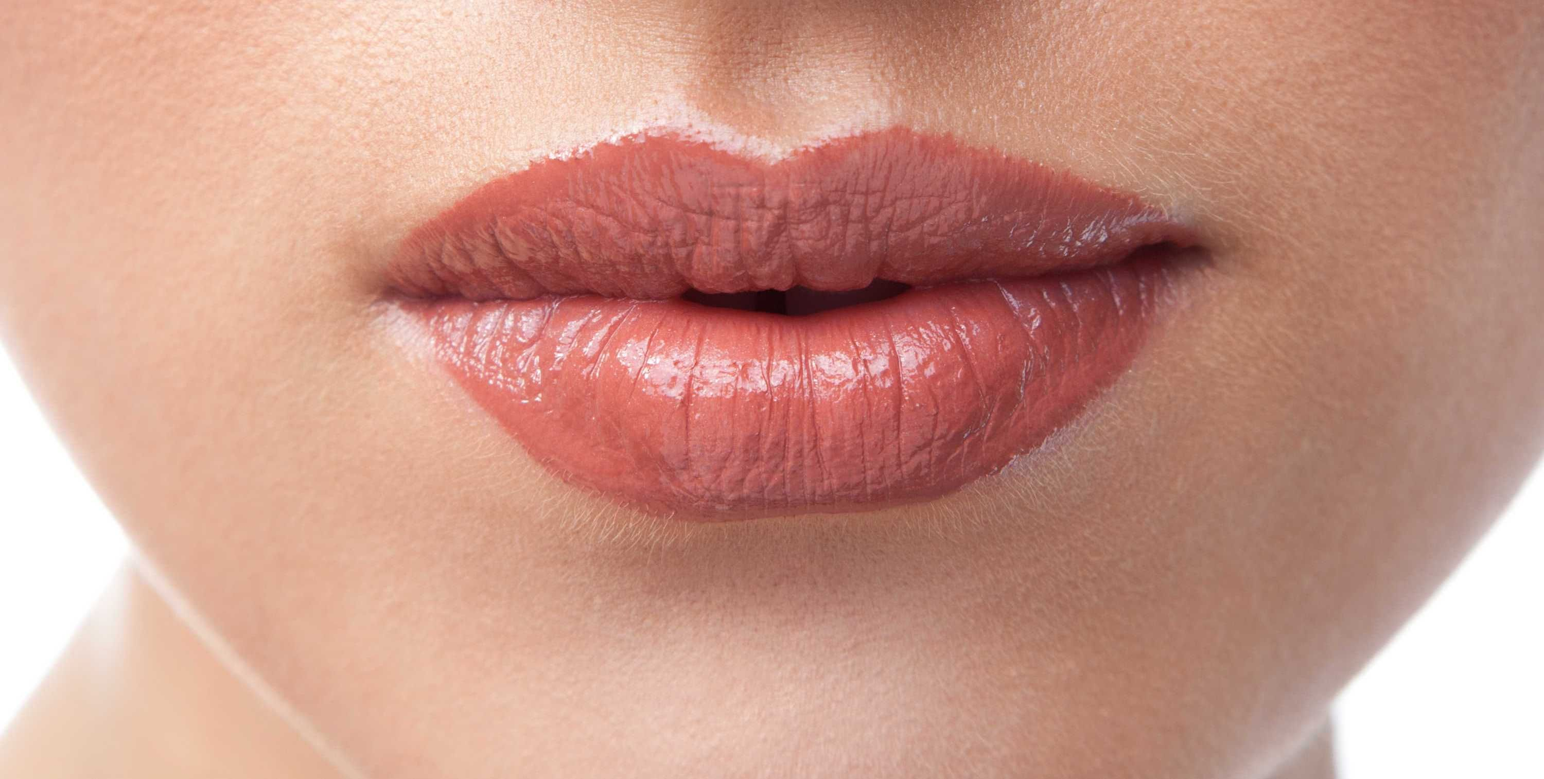 What Are Lip Fillers Lip Augmentation Lip Fillers Lip Injections