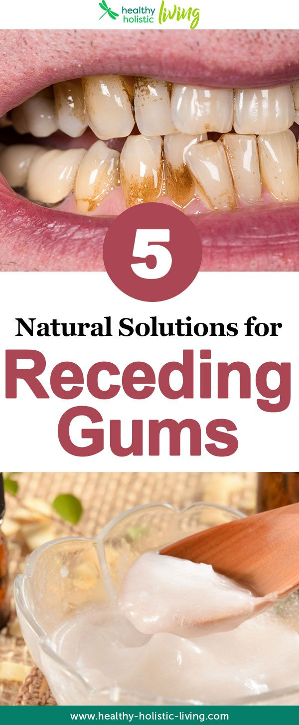 IfYou Have Receding OrUnhealthy Gums, Here Are Proven Solutions