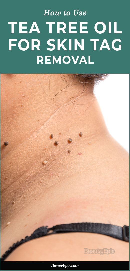 How To Remove Skin Tags With Tea Tree Oil  Skin Tag -8831