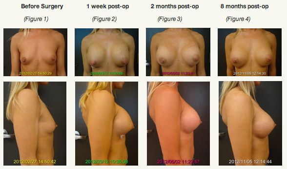 how much are breast implants pointed