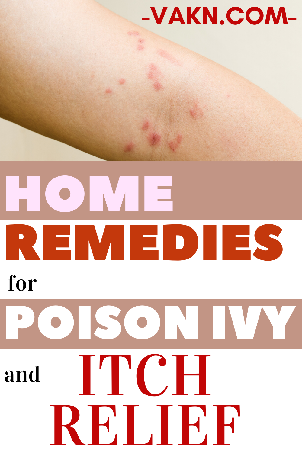 Home Remedies For Poison Ivy Rash And Itch Relief In 2020 Poison Ivy Remedies Poison Ivy Rash Poison Ivy Remedies Itch