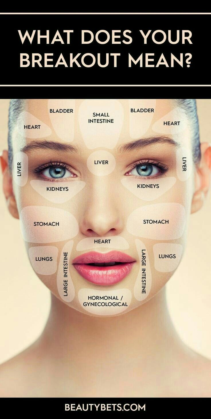 What does your breakout mean? Acne starts inside your body