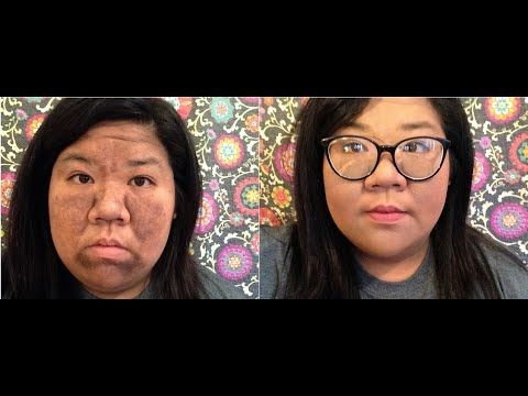 how to cover hyperpigmentation with makeup