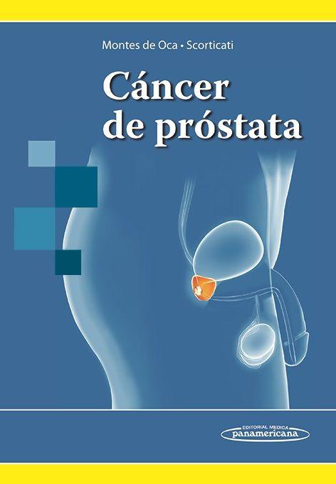 próstata adenoma xbox 360 trucos