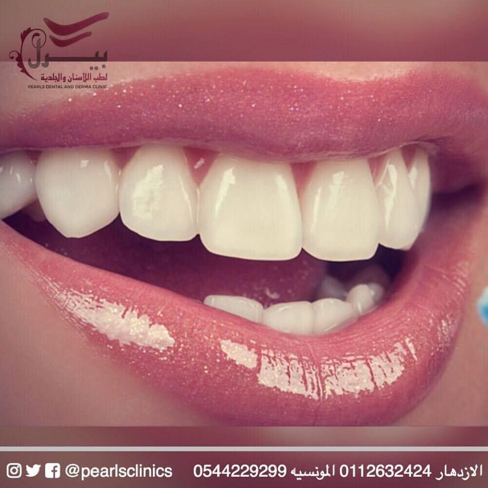 ارتبط مظهر الأسنان وبياضها بالجمال حتى أن الأسنان بلونها اللؤلؤي أصبحت في العصر الحديث رمزا للجمال والأنوثة ول Convenience Store Products Convenience Store