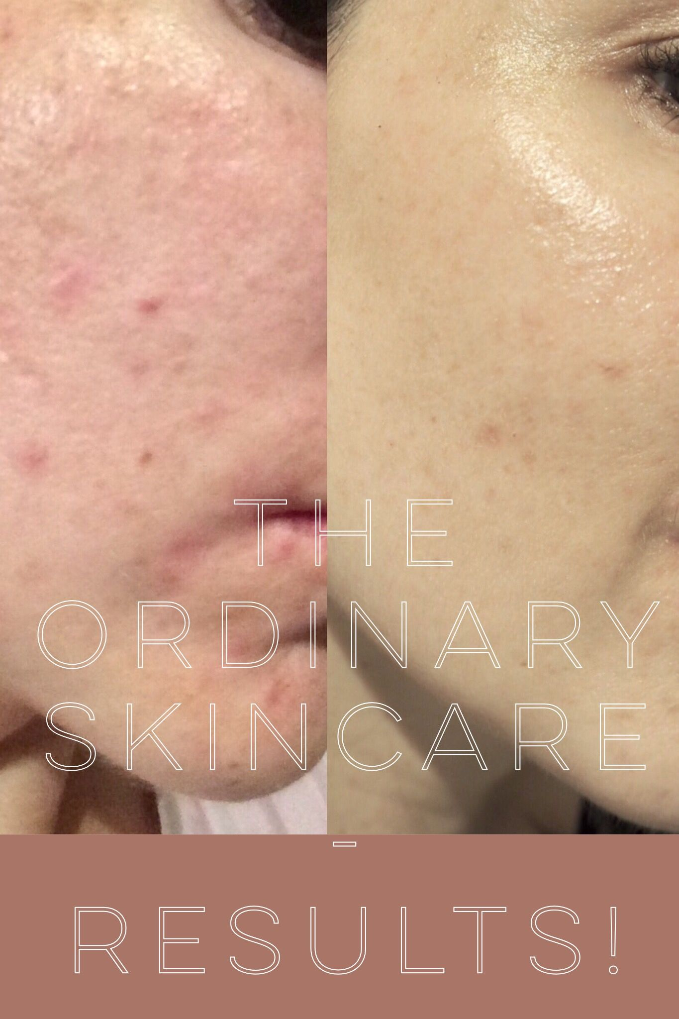 The Ordinary Results! Before and After Pictures The