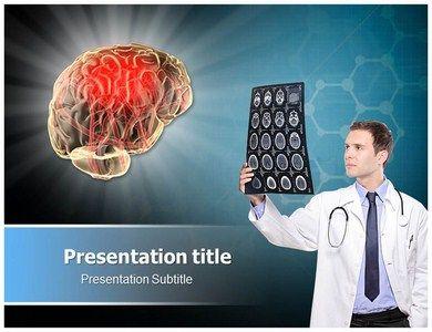 Human Brain Damage Powerpoint Template  Slideworld  Heath