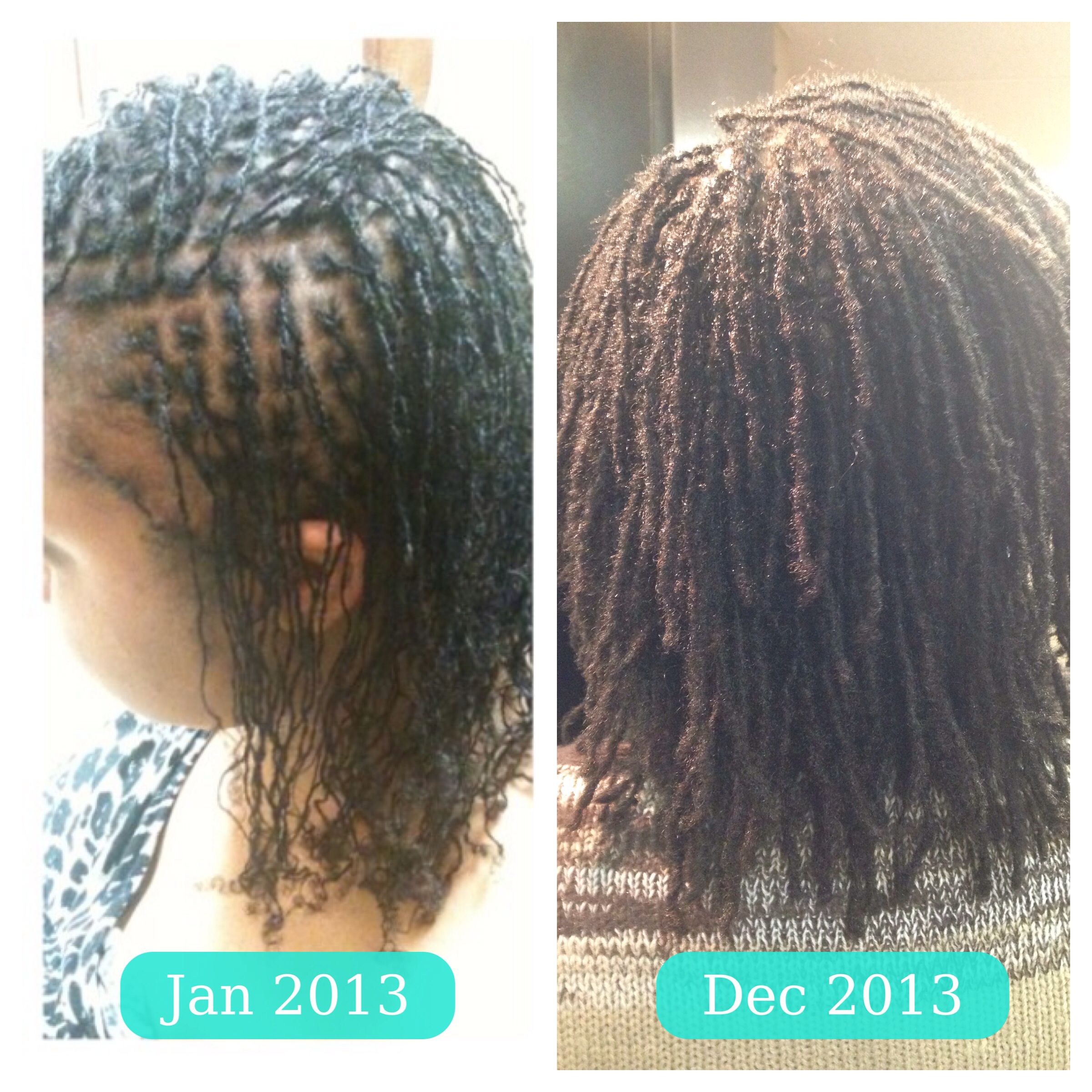 One Year Loc Texture Difference One Month Into My Braidlocs And