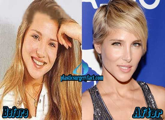 Elsa Pataky Nose Job Before And After Elsa Pataky Plastic Surgery Nose Job