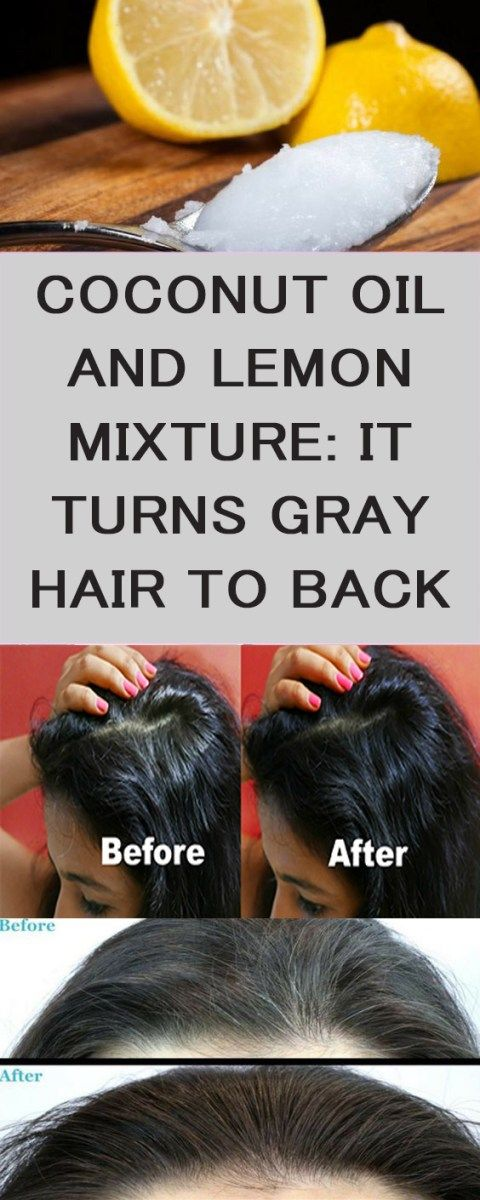 Before We Discover How To Dispose Of Silver Hair Actually It Regards Comprehend What Causes Silver Hair In 2020 Grey Hair Remedies Stop Grey Hair Grey Hair Treatment