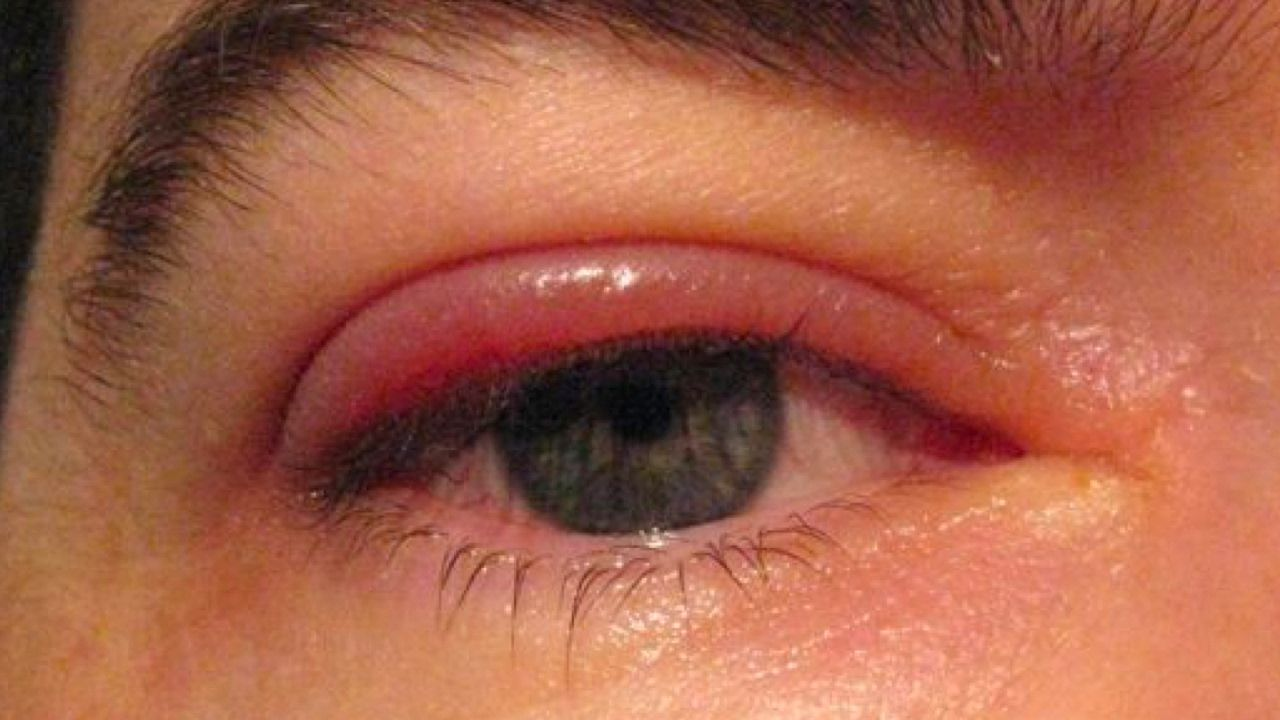What is Blepharitis  Health  Pinterest  Natural remedies and