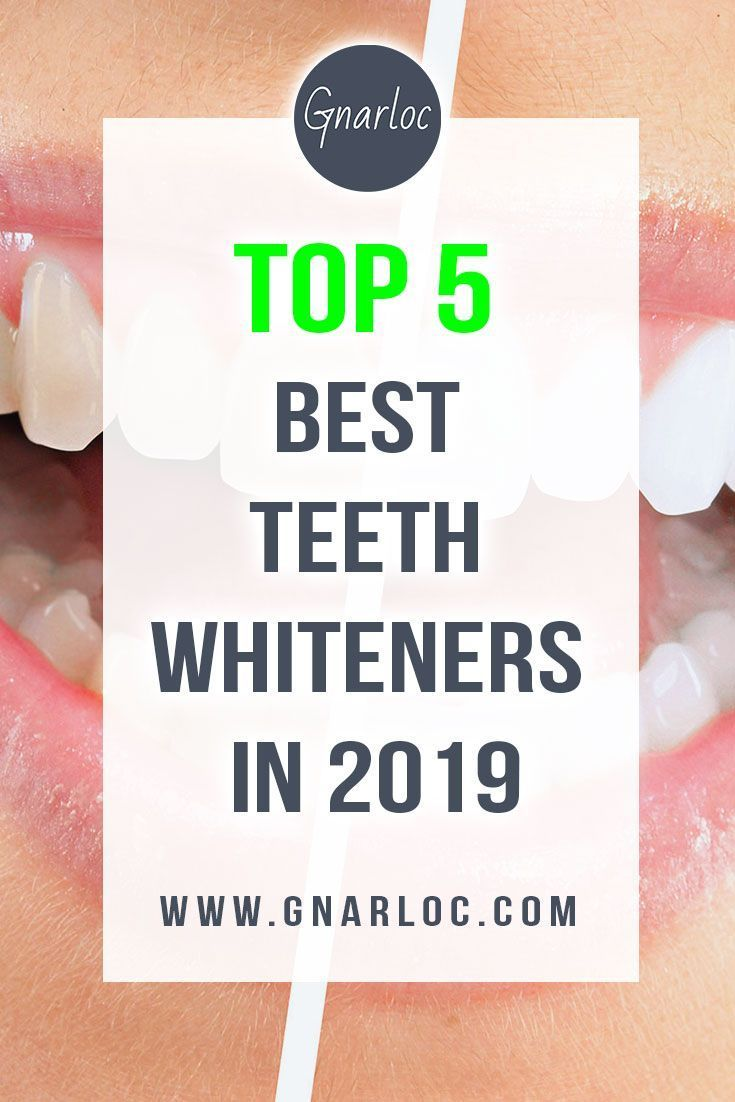 Top 5 Best Teeth Whitening Kits (#3 Is The Most Popular!) #bestteethwhitening