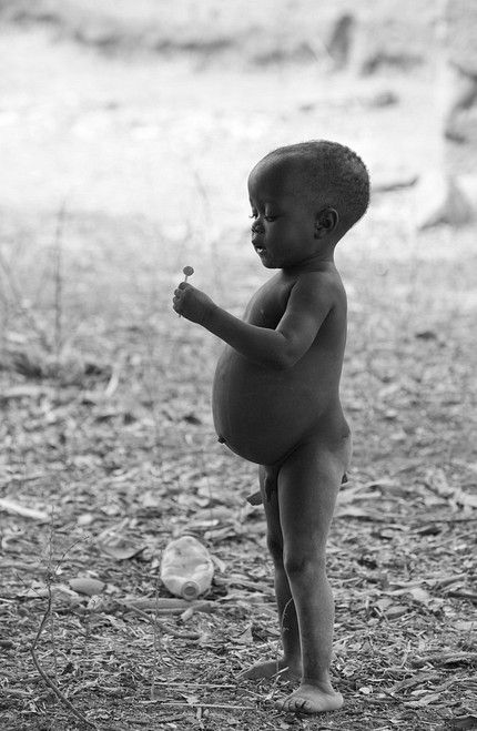 Portfolios | Gentuso Photography #starving children