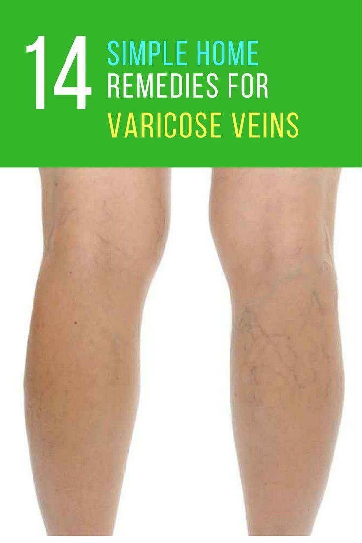 geli varicose picior venele varicoase ale hepatice de ciroză