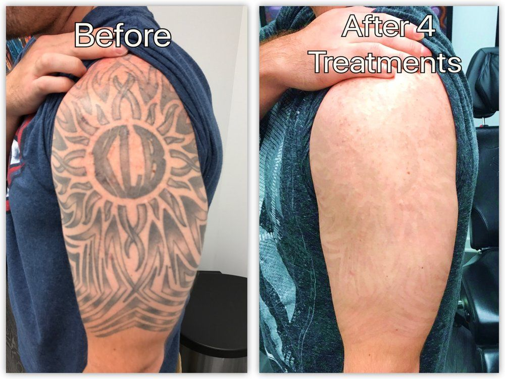 Laser tattoo removal before and after update 2021 laser