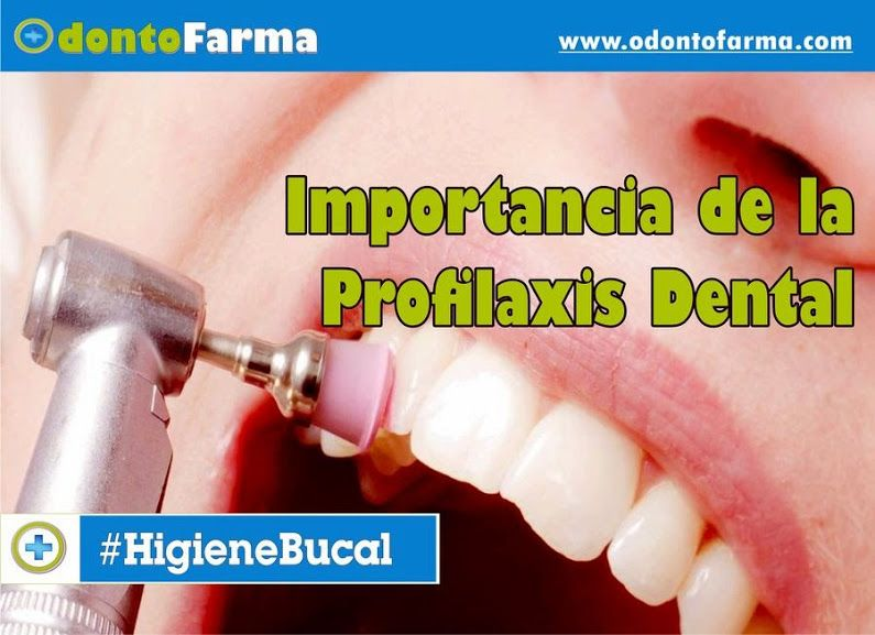 profilaxis-dental-importancia