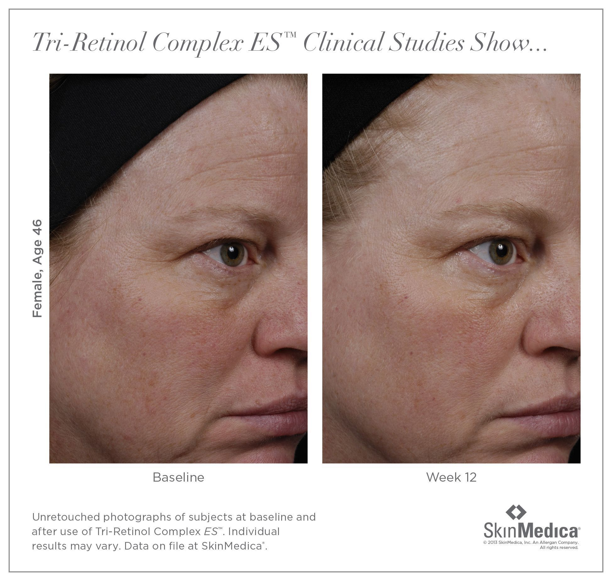 Before And After 46 Year Old Woman 3 Months Of Using Retinol Cream Skinmedica Foreveryoung Koreanskincarebeforeandafter Retinol Cream Skin Medica Retinol