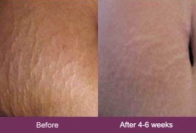 Mederma Before And After With Images Mederma Mederma Cream
