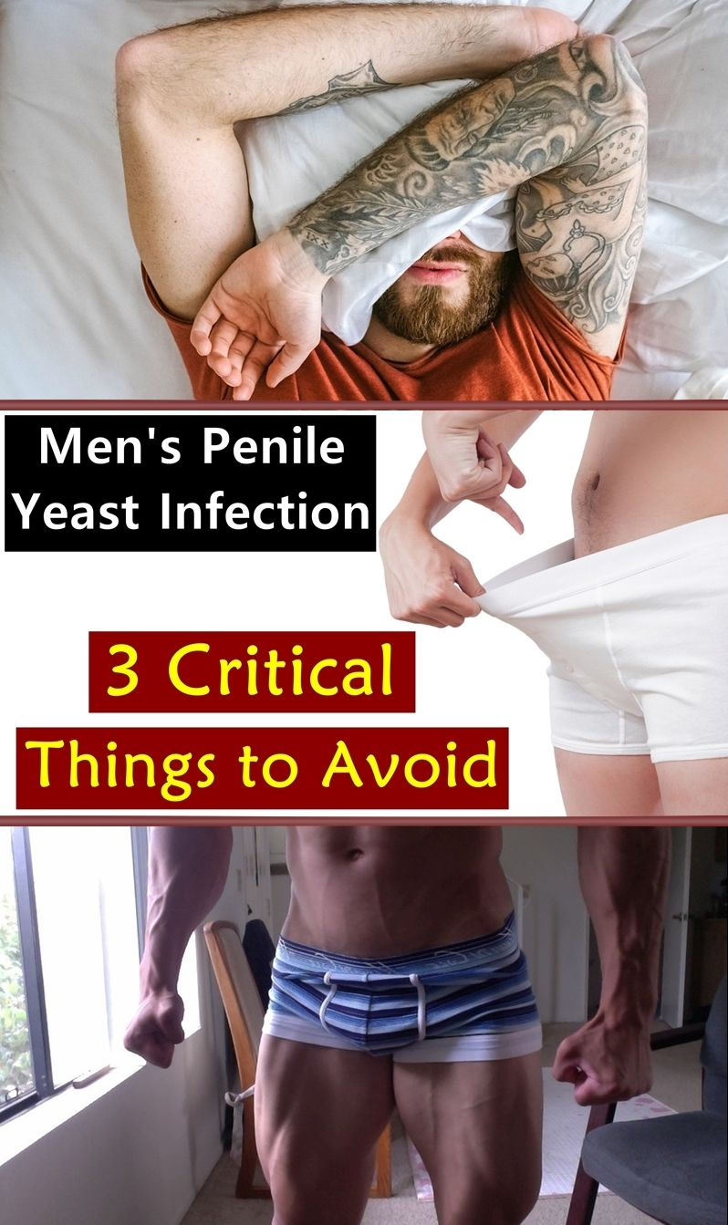 Pin On Yeast Infection Causes
