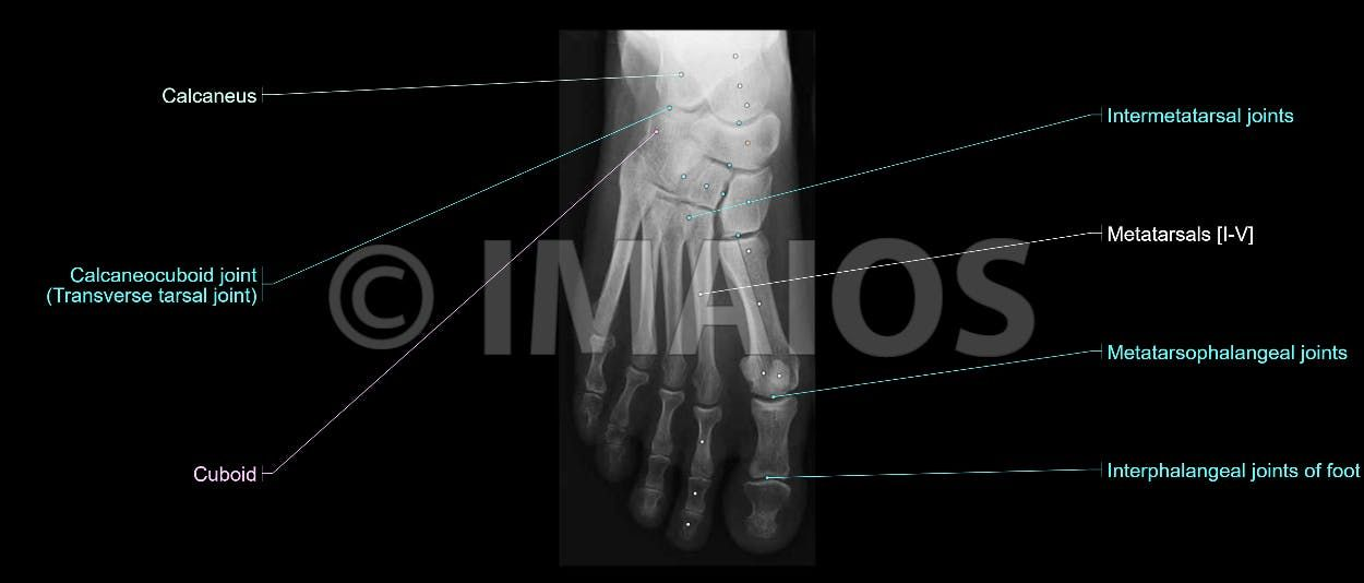 Superior radiograph of the foot with all anatomical structures ...