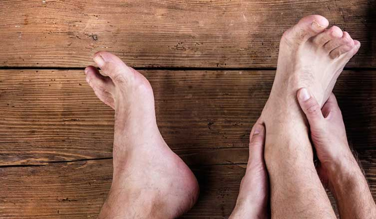 Top 15 Natural Home Remedies for Sprained Ankle Foot