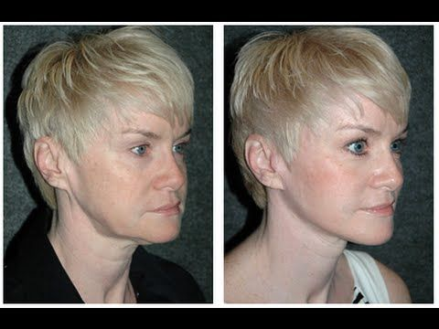 Mini Facelift Dr Andrew Jacono Reviews Mini Face Lift Face Lift Surgery Short Hair With Layers