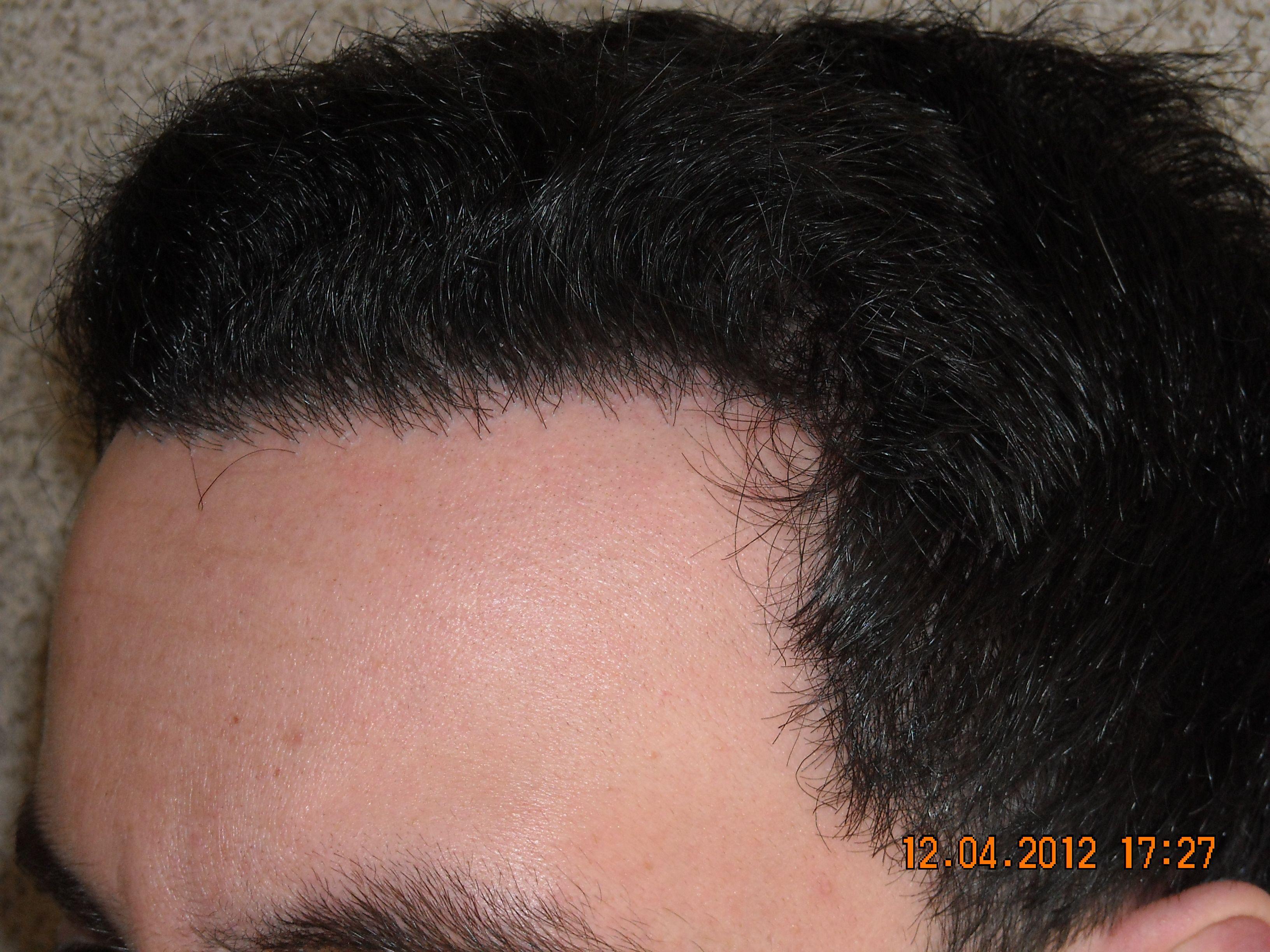 Resultatet 8 månader efter en hårtransplantation. April 2012