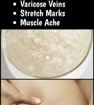 This Effective 3-Ingredient Mixture Will Help You Get Rid of Cellulite, Varicose Veins, Stretch Mark...