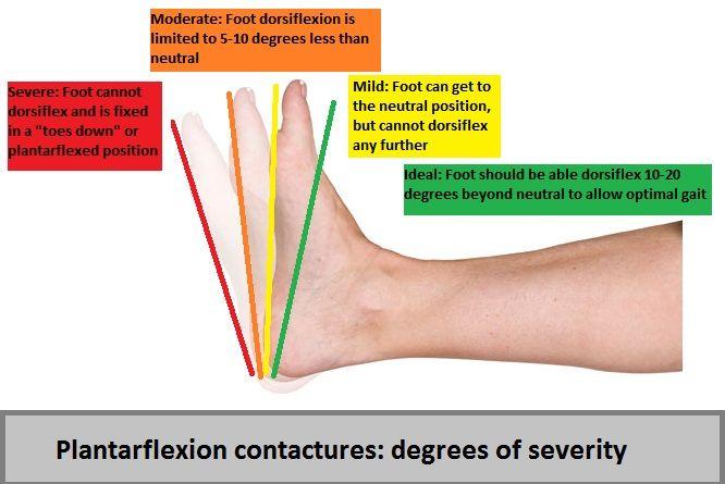 41++ What causes tight calves ideas
