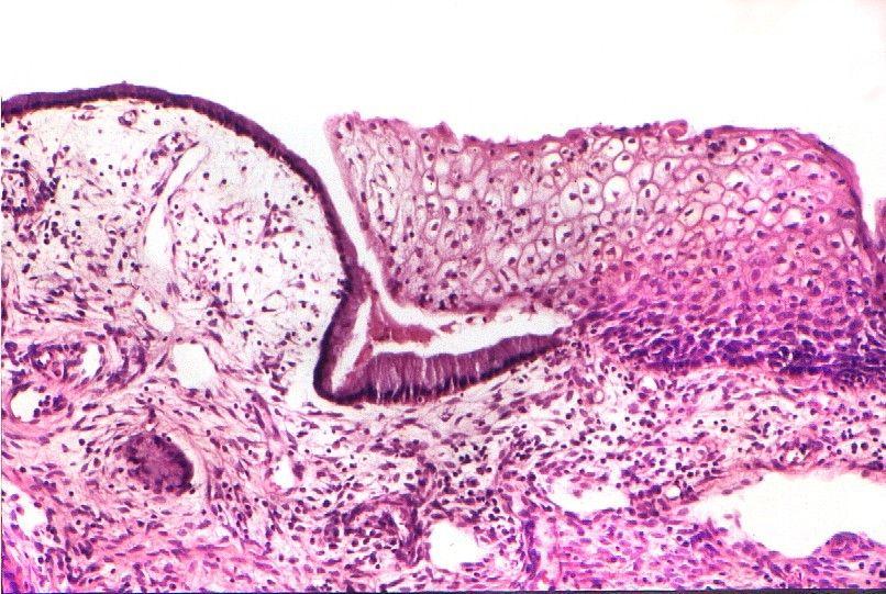Transición endocérvix- exocérvix