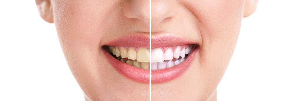 Cómo blanquear los dientes de forma casera