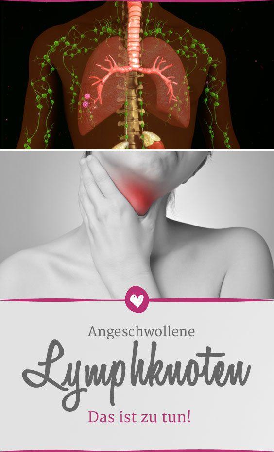 Angeschwollene Lymphknoten: Warum sie entstehen und was Sie tun ...