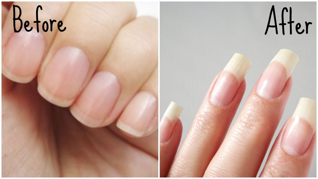 Diy Nail Growth Recipe Nail Growth In 5 Days Styledbyaishyee Youtube How To Grow Nails Nail Growth Tips Healthy Nails